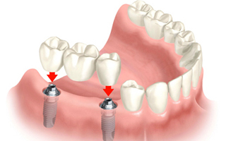 dental aesthetica dental implants