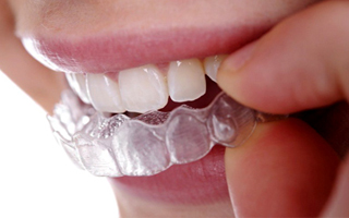 dental aesthetica smile aligners