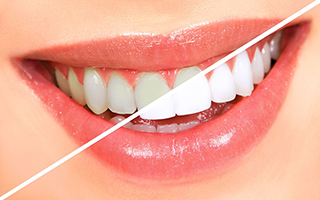 dental aesthetica teeth whitening