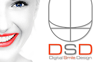 digital smile design - DSD treatment in gurgaon