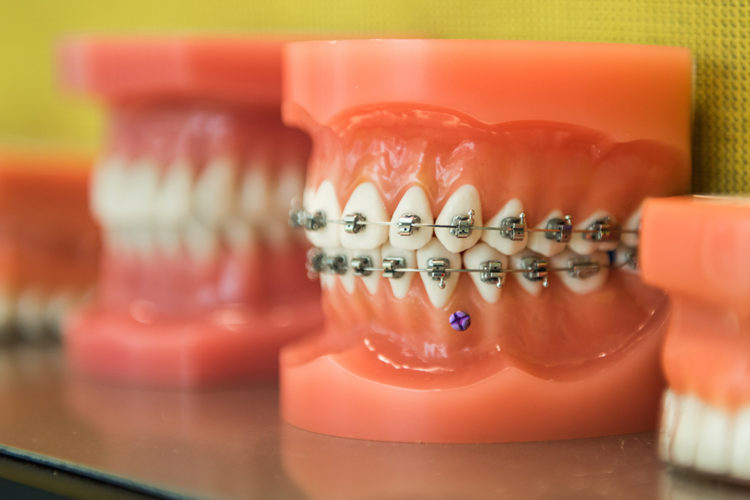 Best Orthodontics in delhi