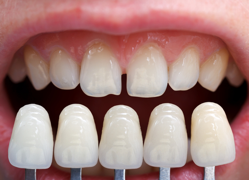 Cosmetic Dentistry in guraon