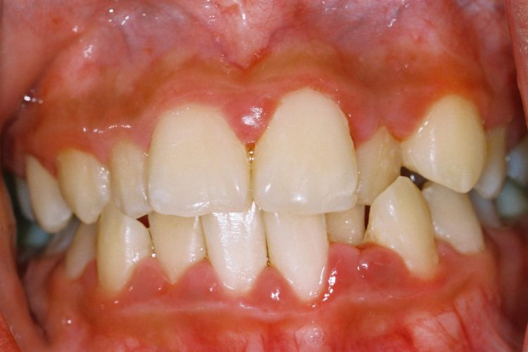 best gums Disease Treatmen in delhi