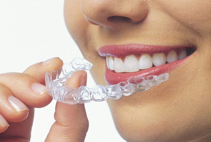 best smile clear aligners in delhi