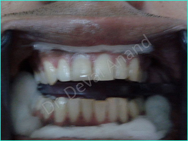 Laser Zoom Whitening treatment in gurgaon