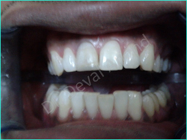 Laser Zoom Whitening treatment in gurgaon - 2