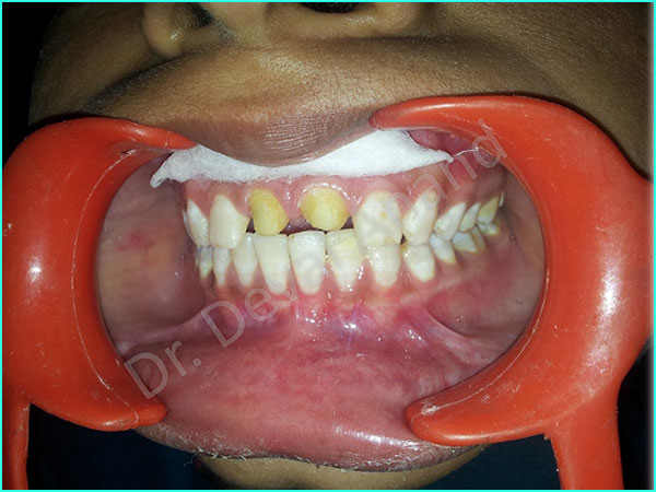 Metal Ceramic Crown treatment in gurgaon