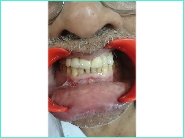Metal-Ceramic Crown treatment in gurgaon