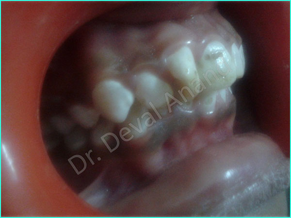 Metal-Ceramic Crown treatment in gurgaon - 12