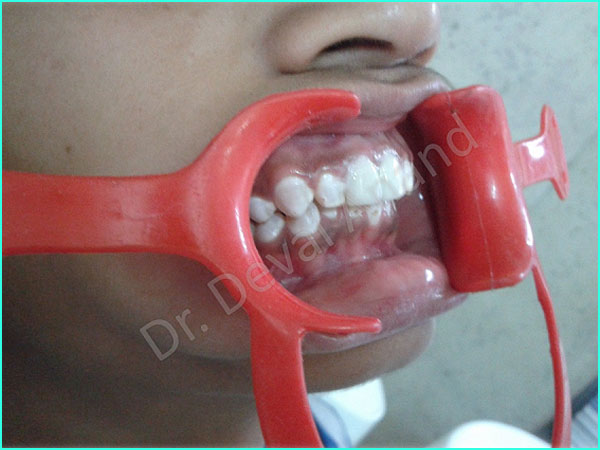Metal-Ceramic Crown treatment in gurgaon - 13