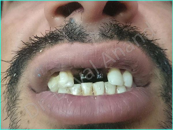Dental implant treatment in gurgaon - 2