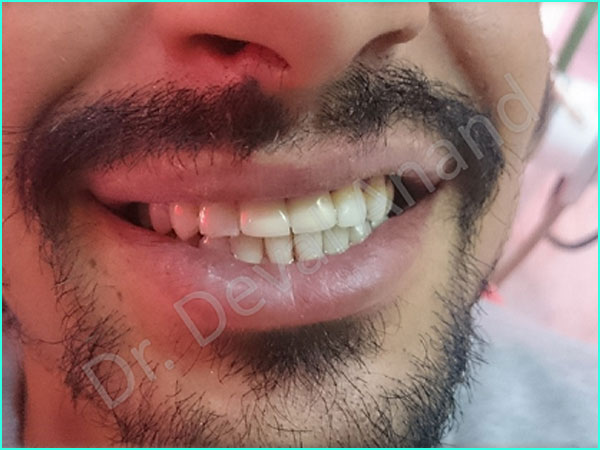 Dental implant treatment in gurgaon - 3