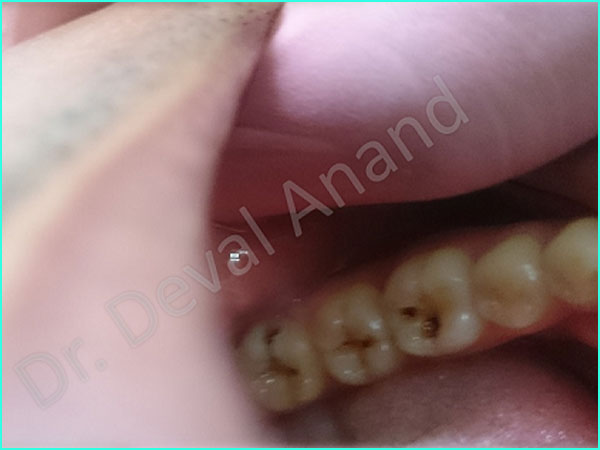 Dental Aesthetica - Tooth-color filling-2