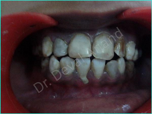 Dental Aesthetica - Veneers-1