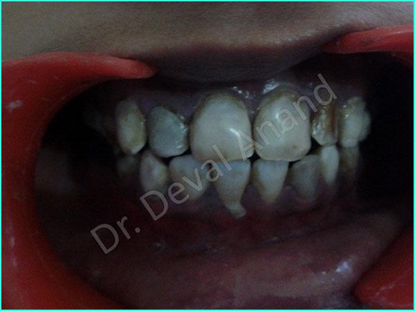 Veneers - Dental Aesthetica - 2