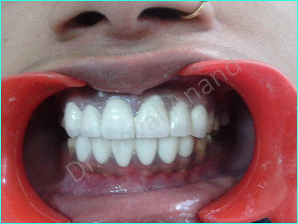 Veneers - Dental Aesthteica - 3