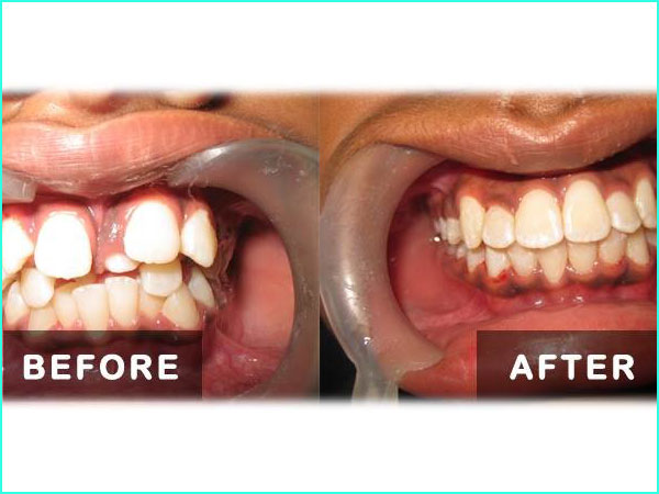 braces treatment in gurgaon -2