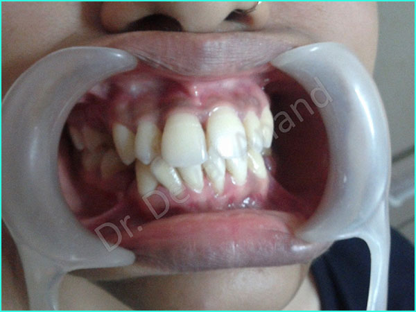 braces treatment in gurgaon -3