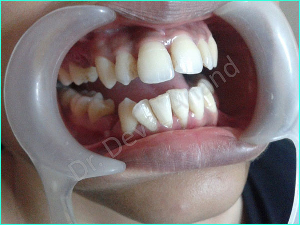 braces treatment in gurgaon -4