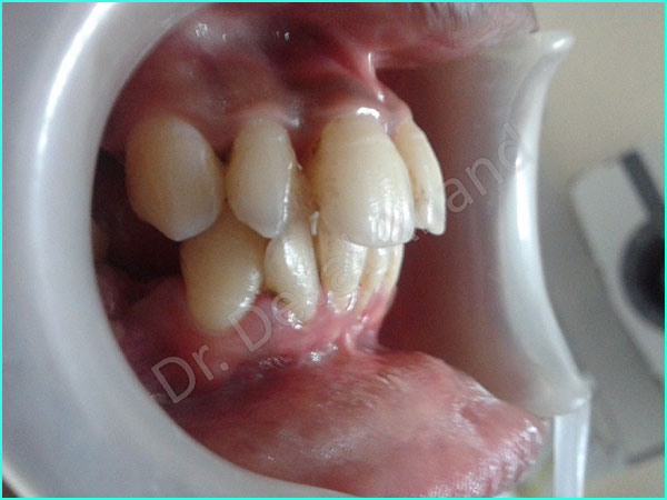braces treatment in gurgaon -5