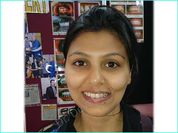 braces treatment in gurgaon -6