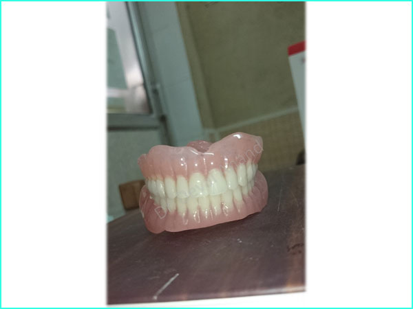 Denture treatment in gurgaon -3