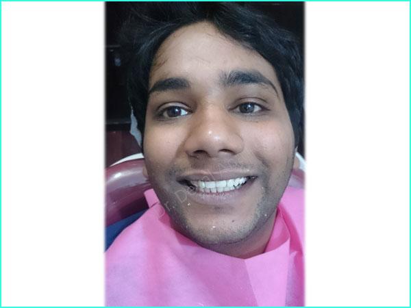 emax crown treatment in gurgaon -3