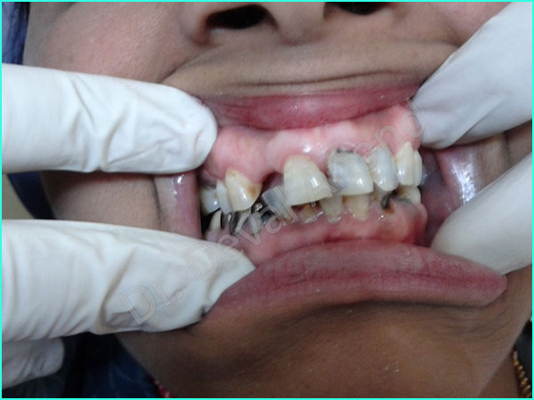 full mouth rehab treatment in gurgaon