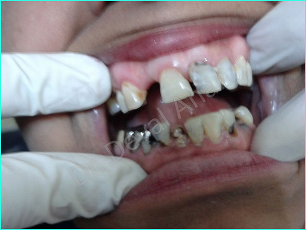 full mouth rehab treatment in gurgaon - 2