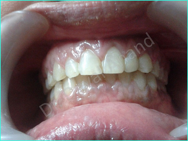 Dental Aesthteica - Smile-Aligner-11