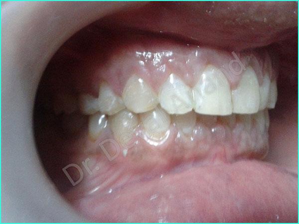 Dental Aesthteica - Smile-Aligner-12