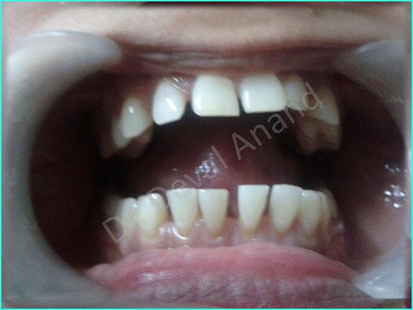Dental Aesthteica - Smile-Aligner-13