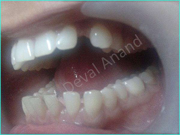 Dental Aesthteica - Smile-Aligner-14