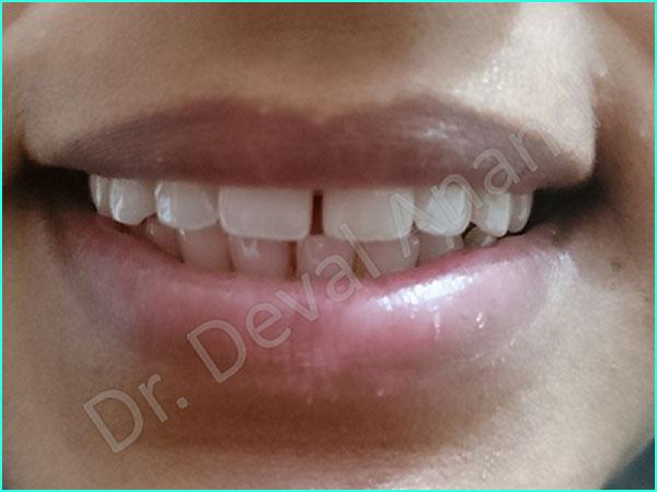 Dental Aesthteica - Smile-Aligner-15