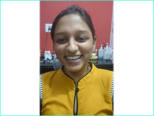 Dental Aesthteica - Smile-Aligner-17