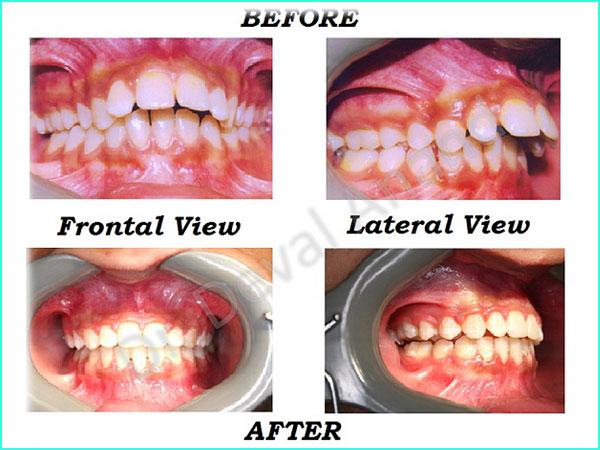 Dental Aesthteica - Smile-Aligner-18