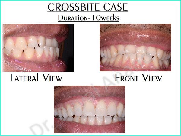 Dental Aesthteica - Smile-Aligner-19