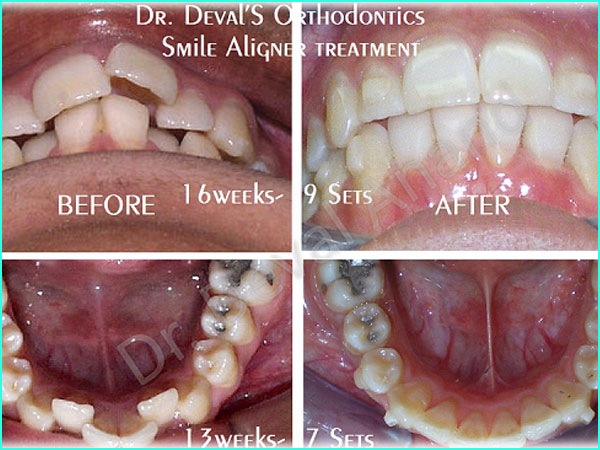 Dental Aesthteica - Smile-Aligner-22