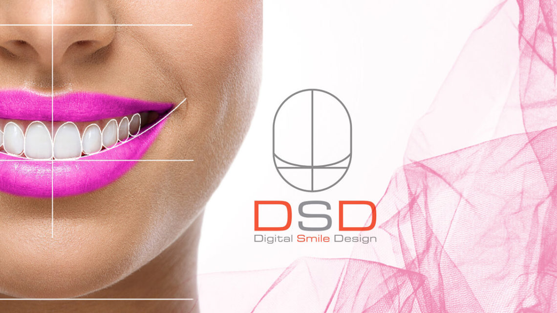 digital smile design - DSD
